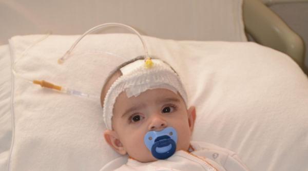 5 Aylık Bebeğe Böbrek Taşı Ameliyatı