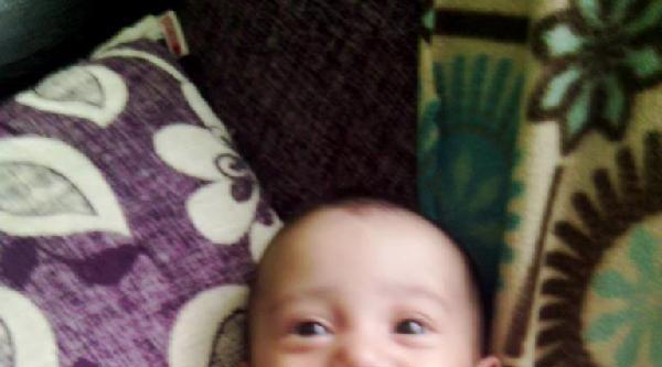 5 Aylık İkizleri Ölüm Ayırdı