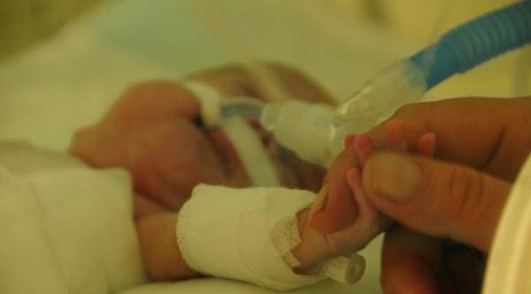 6 Aylik Ve 600 Gram Doğan Lina Bebeğe Kalp Ameliyati