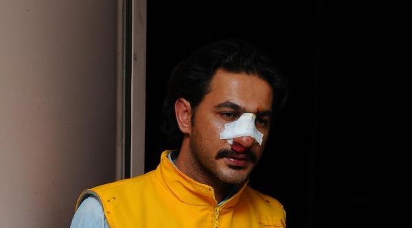 Ambulans Şemsiyeye Çarpti Diye Sağlık Görevlisinin Burnunu Kırdı