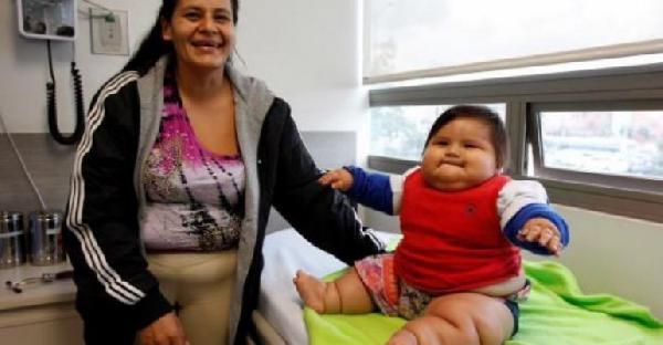 Annenin Zayıf Gördüğü Bebek 8 Ayda 21 Kiloya Ulaştı