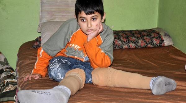 Ayaklarini Ot Biçme Makinesine Kaptiran Çocuğa Protez Bacak