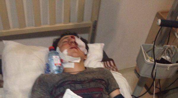 Azerbaycan-ermenistan Sınır Hattında Gerginlik: 2 Yaralı