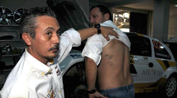 Bakan Korumalarının Tartakladığı Rallici Şengezener, Şampiyonaya Katılamadı