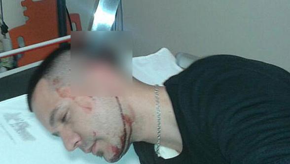 Başına saplanan bıçakla hastaneye koştu!