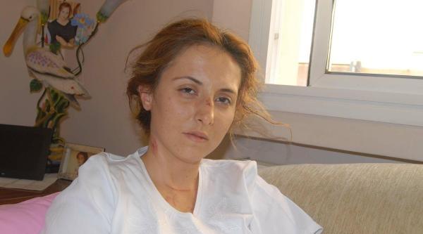 Beş Yıldızlı Otelin Otoparkında İş Kadınını Gasp Eden Zanlı Yakalandı