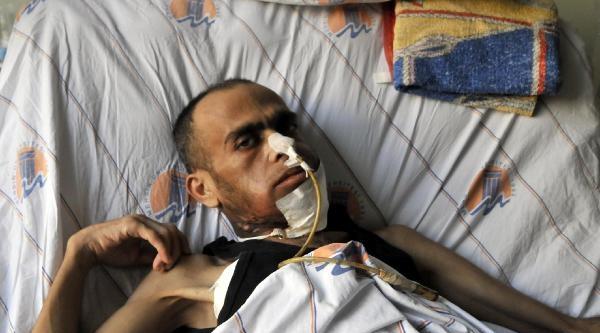 Biber Gazıyla Kanser Olduğunu İddia Eden Gezi Eylemcisi Mehmet İstif Öldü
