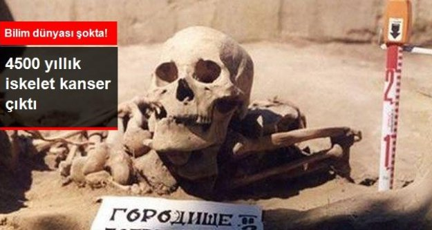 Bilim dünyası şokta! 4500 yıllık iskelet kanser çıktı!