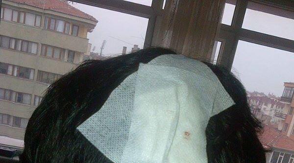 Bolu'da Saldırıya Uğrayan Üniversite Öğrencisi Yaralandı