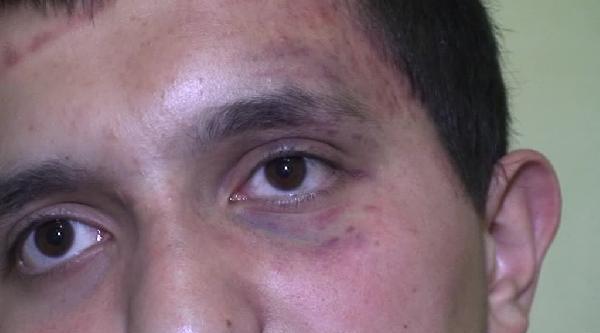 Brüksel'de 17 Yaşındaki Türk Gencine İşkence İddiasi