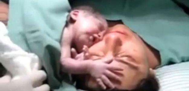 Bu bebek annesinden ayrılmak istemedi!