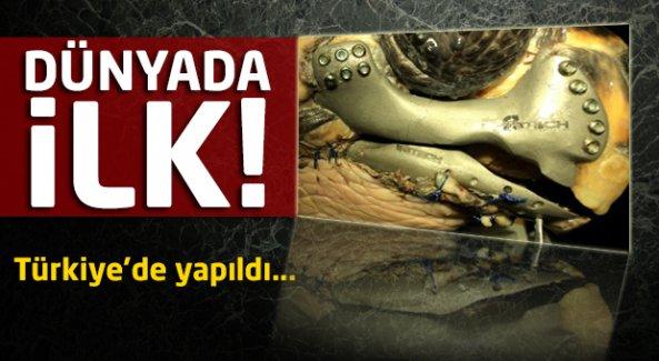 Bu operasyon dünyada ilk! Türkiye'de yapıldı...