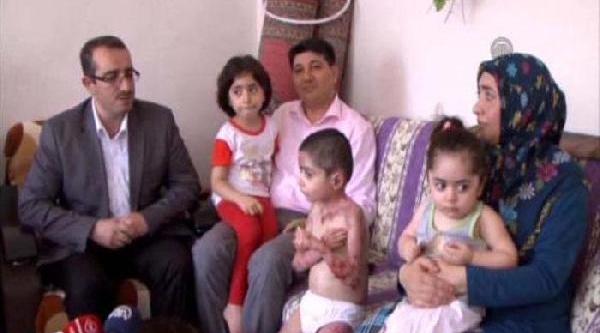 Cilt Hastasi Kardeşlerin Eğitimi Evinde Sürecek