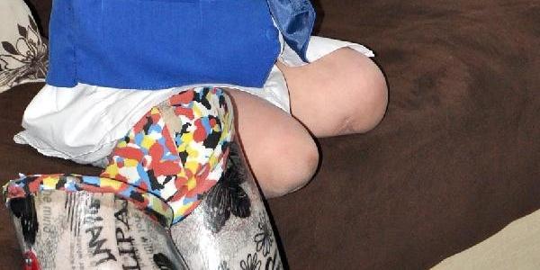 Doğuştan Bacaklari Olmayan Miraç'in Kalbi Delik Çikti