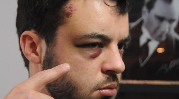 Edirne'De Polis Şiddeti Iddiasi