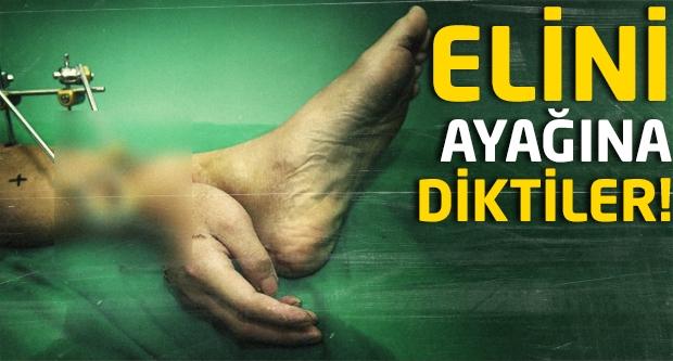 Elini ayağına diktiler!