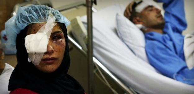 Esed kana doymuyor! Yine varil bombalı katliam:72  ölü!