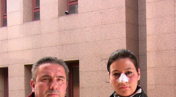 Eşini Sıcak Suyla Haşlayan Kocaya Önce Ceza Sonra Tahliye