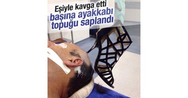 Eşiyle kavga eden adamın başına ayakkabı topuğu saplandı
