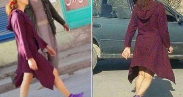 Etekli Afgan Kadın Dünyayı Şoke Etti