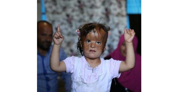 Fatma'nın gözü Türk doktorlarında