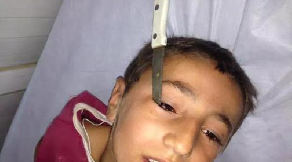 Gözüne Batan Bıçak Hastanede Çikarildi