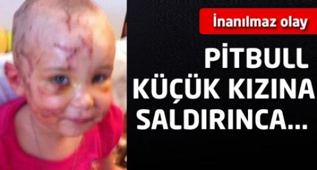 İnanılmaz olay! Pitbull küçük kızına saldırınca...