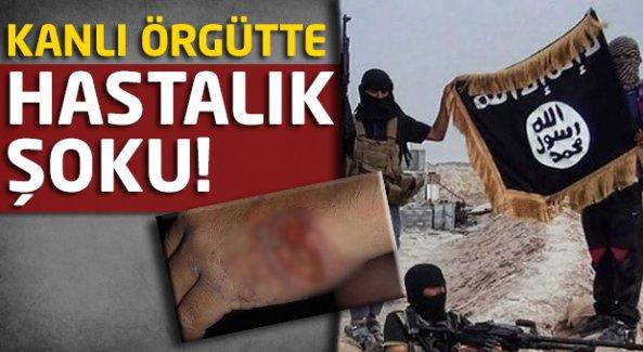 IŞİD'e 'şark çıbanı' teşhisi