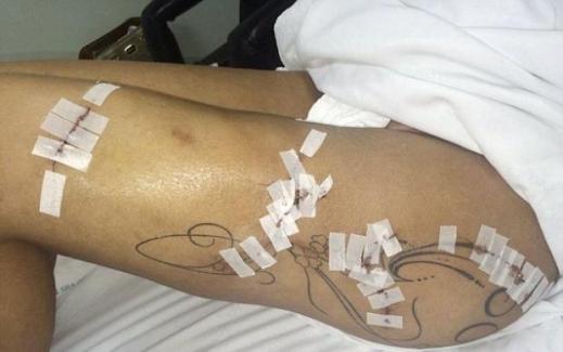 Kalça protezleri onu bu hale getirdi