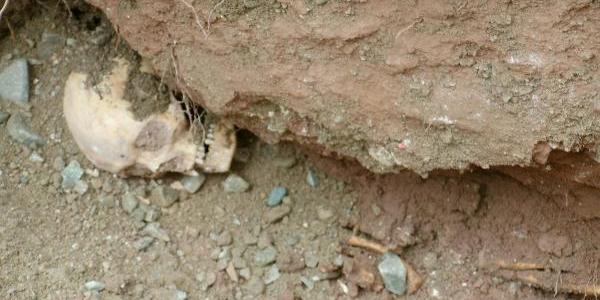Kanalizasyon Kazisinda Insan Kemikleri Bulundu