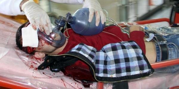 Kayseri'De Silahli Kavga: 1 Yarali