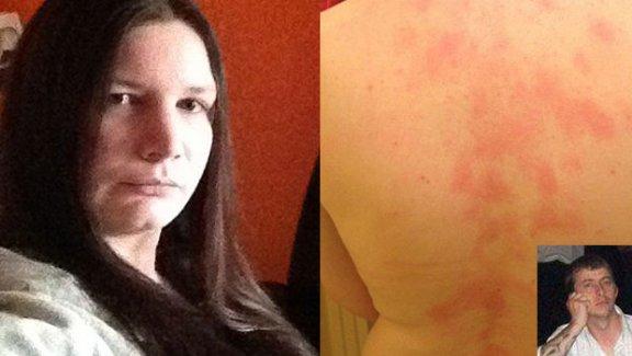 Kocasına alerjisi var!
