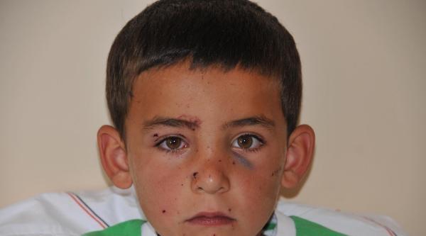 Köstebek Tabancası Elinde Patlayan Çocuk Yaralandı