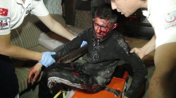 'laf Atma' Tartışmasında Dövülüp, Bıçaklandı