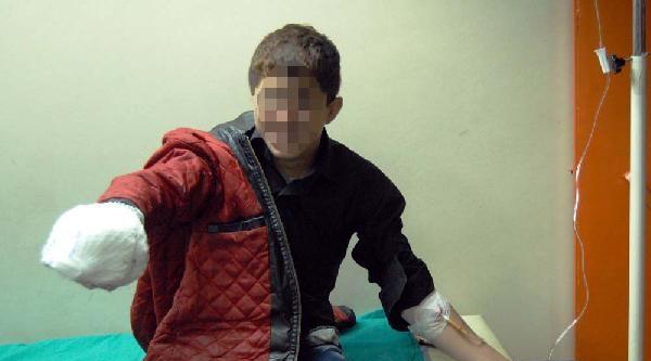 Molotofkokteyli Elinde Patlayan Çocuğa 1 Yıl 8 Ay Hapis