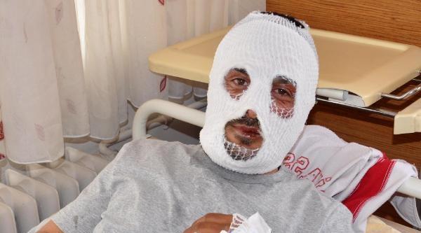 Mutfak Tüpünden Sızan Gaz Patlayınca Yaralandı