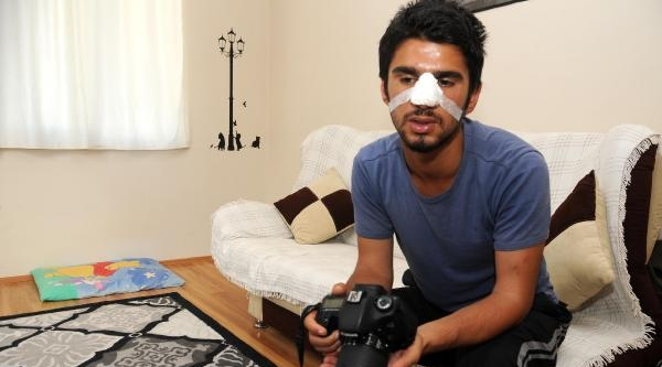 Öğrenciden Polisler Hakkında Dayak Şikayeti