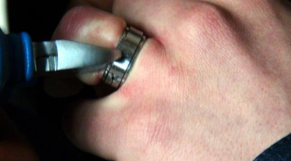 Parmağında Sıkışan Yüzüğü İtfaiye Ekipleri Çikardi