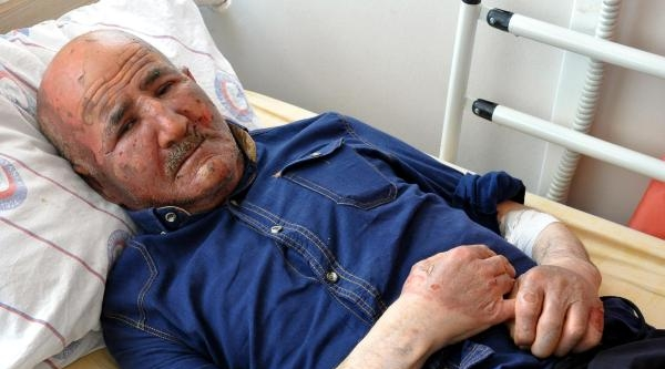 Piknik Tüpünden Sızan Gaz Patlayınca Yaralandı