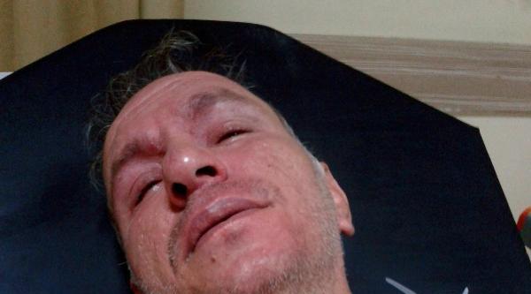 Polisi Elinden Bıçaklayan Işid Yüzüklü Saldırgan, Bacağından Vuruldu