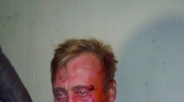 Polisten Kaçarken Yaralandı