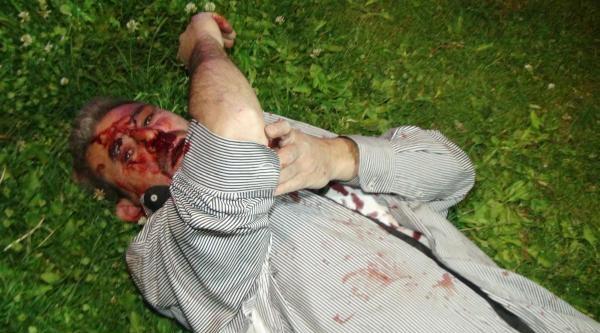 Pompalı Tüfekle Gittiği Birahanede Dövüldü