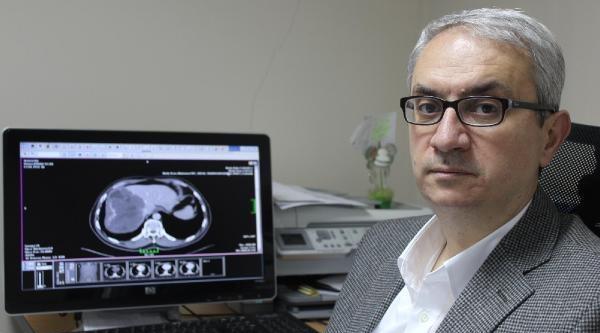 Prof. Dr. Aydınlı: Karaciğer Hastalığını Son Evrede Öğrenen Var