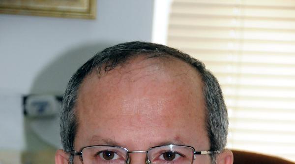 Prof. Dr. Şahin: Türkiye'de 80 Bin Alzheımer Var