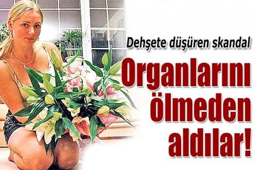 Rus kadın ölmeden organlarını aldılar