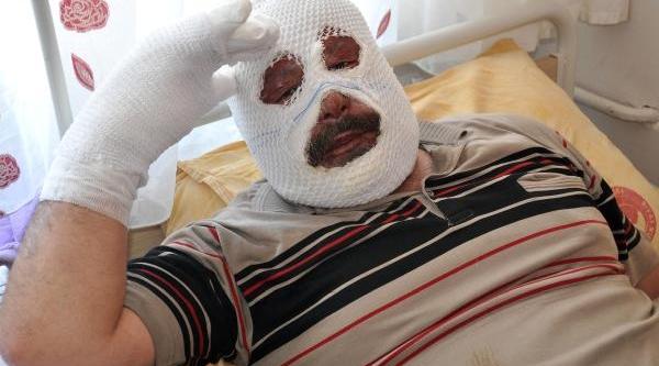 Şoför Çakmaği Çakti, Tir Kabininde Tüpten Sizan Gaz Patladi