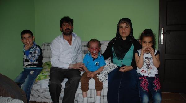 Tedavisi Yurt Dışında Ama, Ailesinin Maddi Gücü Yok