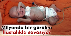 Minik Mustafa milyonda bir görülen hastalıkla savaşıyor