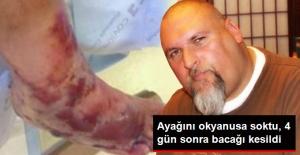 Ayağını Okyanusa Sokan Adamın 4 Gün Sonra Bacağı Kesildi
