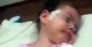 18 aylık Arife'nin fotoğrafı Sağlık Bakanlığı'nı harekete geçirdi